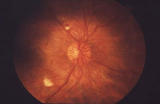 Fundus Proliferative retinopathy EDA01