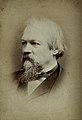 John Marshall. Photograph by G. Jerrard. Wellcome V0026821.jpg