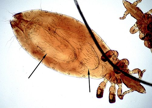 Linognathus louse female ventral.jpg