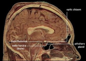 Cross-section of a human head, showing location of the hypothalamus. LocationOfHypothalamus.jpg