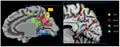 Medial parietal lobe.png