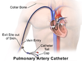 Pulmonary Artery Catheter.png