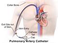 Pulmonary Artery Catheter.png
