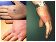 Erysipeloid na kůži ruky