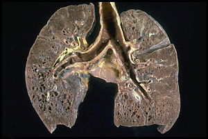 Sarcoidosis - Honeycombing of lungs