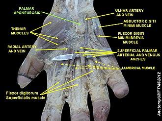 Palmar aponeurosis - Image: Slide 10RRR
