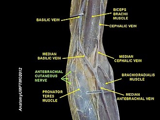 Medial cutaneous nerve of forearm - Image: Slide 15DDD