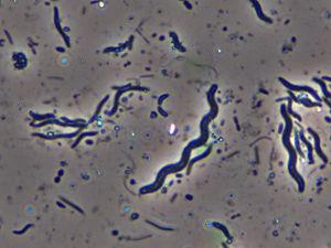 Nitrosomonadales - Spirillum