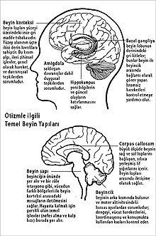 okb beyin görüntüleme ile ilgili görsel sonucu
