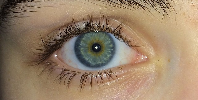 File:Blue green eyes with central heterochromia.jpg ...