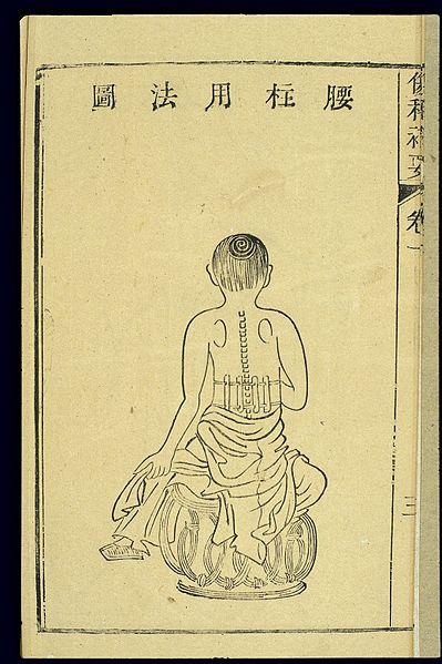 File:Chinese woodcut; Lumbar fixation splint Wellcome L0038860.jpg