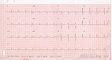 Elektrokardiographie Akuter Myokardinfarkt Wikibooks
