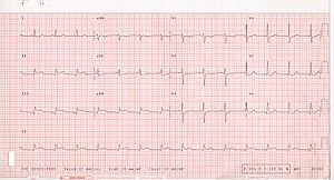 Acute Myocardial Infarction 12 Lead Electrocar...