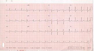 12-lead electrocardiogram (ECG) showing acute inferior ST segment elevation MI (STEMI). Note the ST segment elevation in leads II, III, and aVF along with reciprocal ST segment depression in leads I and aVL.