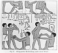 Figures showing a circumcision Wellcome L0000012.jpg