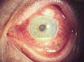 膜 と は 炎 ぶどう 【医師監修】ぶどう膜炎はどうやって治療する? 治療期間はどのくらい?