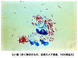 抗酸菌染色の像。らい菌は赤色に染色されている