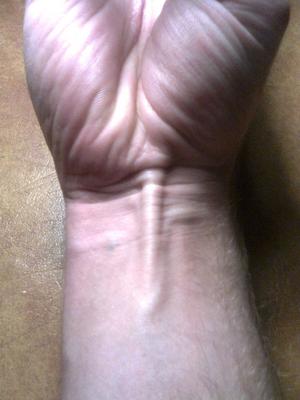 Palmaris longus muscle - Palmaris longus tendon as seen in surface anatomy