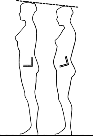 Pelvic tilt - A visual comparison between a neutral and anterior pelvic tilt and how it can affect height.