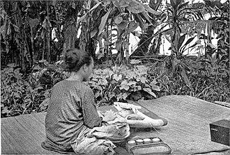 Melanau people - Image: Schädelverunstaltng bei einem Milanaukind