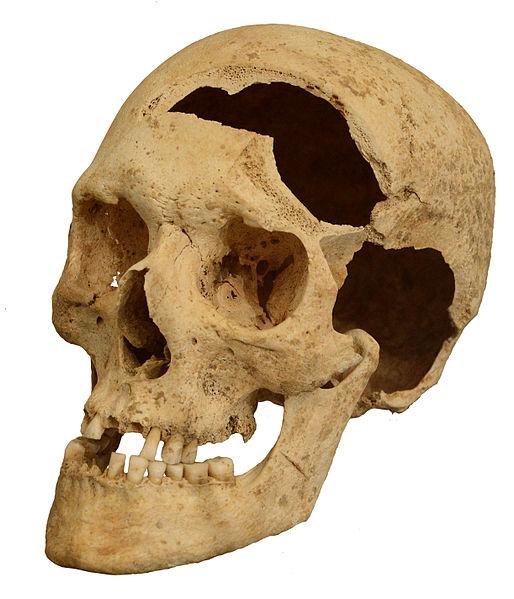 File:Skull damaged by a sword.jpg