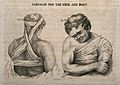 The upper body and head and ways of bandaging them. Stipple Wellcome V0016815.jpg