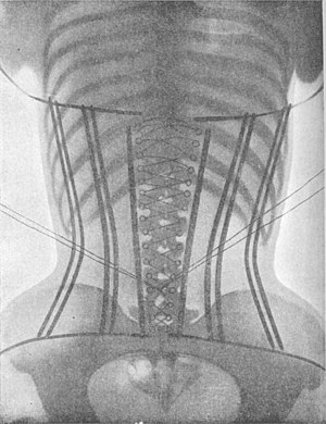 Corset - X-ray of a woman in a corset