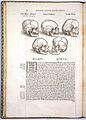 A. Vesalius, De humani corporis fabrica. Wellcome L0021647.jpg