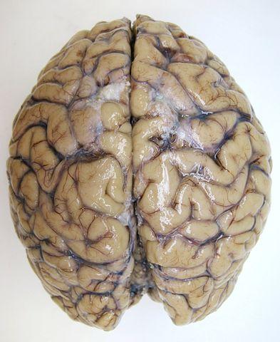 Vänster och höger hjärnhalva sitter samman och kommunicerar via nervcellerna i hjärnbalken.
