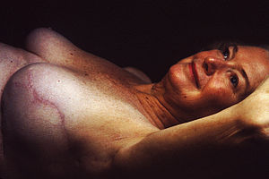 Breast reconstruction - Result of breast reconstruction after mastectomy. Nipple missing, and cicatrix (scar) is prominent.