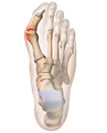Bunion (cropped).png