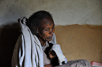 Woman with dementia being cared for at home in Ethiopia Care at Home with Dementia, Tigray (8015180561).jpg