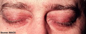 Heliotrope is often associated with periorbita...