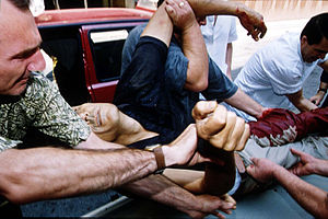 Bosnian War - A victim of a mortar attack delivered to a Sarajevo hospital in 1992.