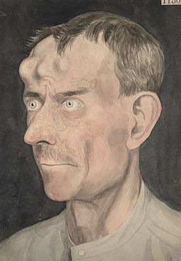 Face of a man affected with tertiary syphilis Wellcome L0062301