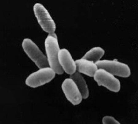 Vi khuẩn cổ