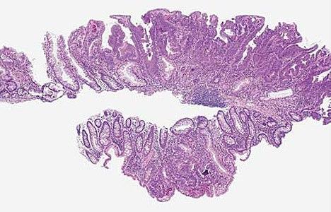 Histopathology of a flat sessile serrated adenoma.jpg