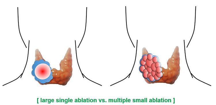 large single ablation vs multiple small ablation