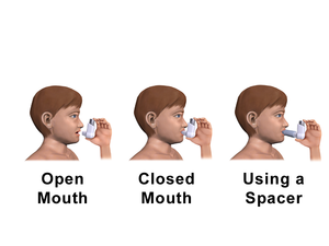 Allergies in children - Some older children can be taught to use their prescribed Metered-Dose Inhaler