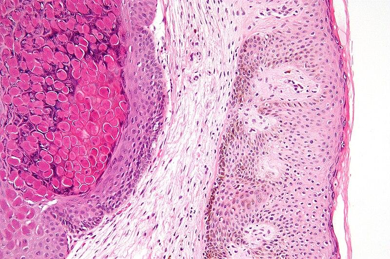 File:Molluscum contagiosum high mag.jpg