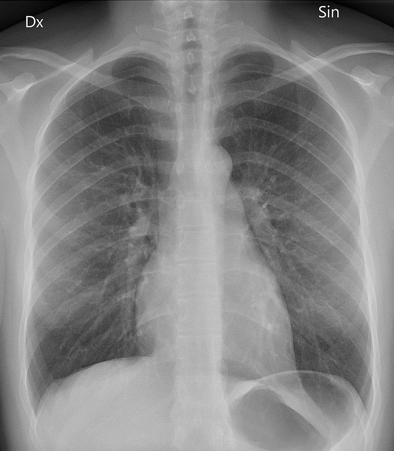 Normal posteroanterior (PA) chest radiograph (X-ray).jpg