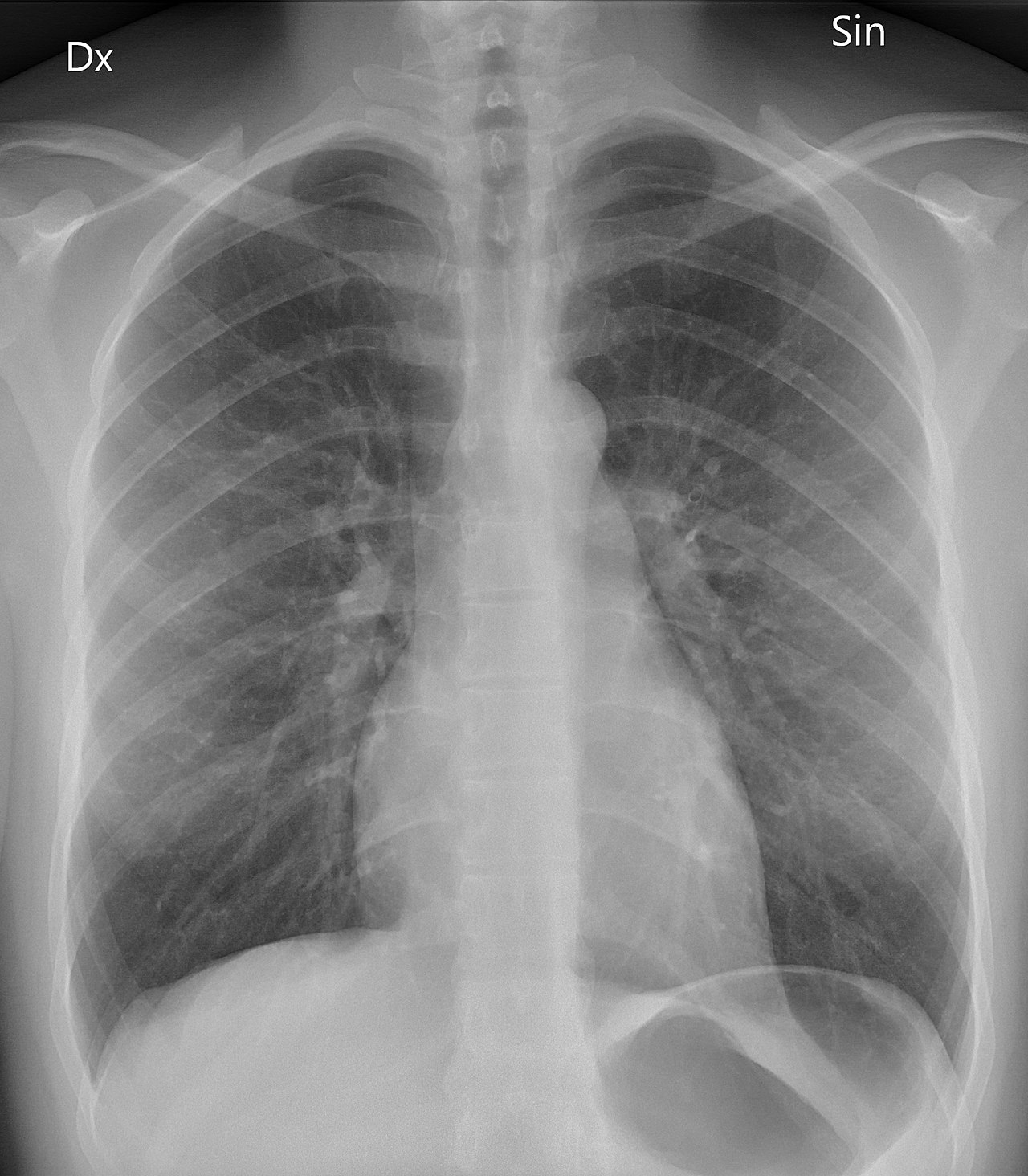 Chest radiographs of a coronavirus patient : China_Flu