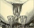 Operative gynecology - (1906) (14760610796).jpg