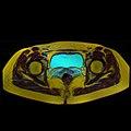 Pelvic MRI 06 09.jpg