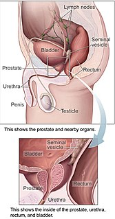 Prostate Gland of the male reproductive system in most mammals