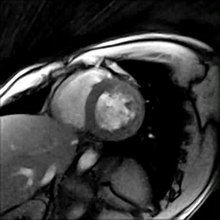 File:Real-time MRI of a human heart (short-axis view).ogv