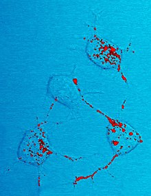 Photomicrograph of mouse neurons showing red stained inclusions identified as scrapies prion protein.