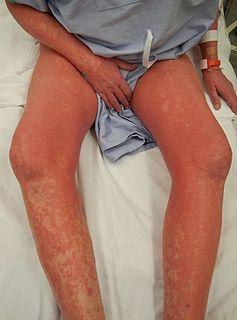 Sézary disease type of cutaneous lymphoma