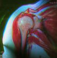 Shoulder MRI 144425 rgbca pdfs t2 t1 cr 61f.png