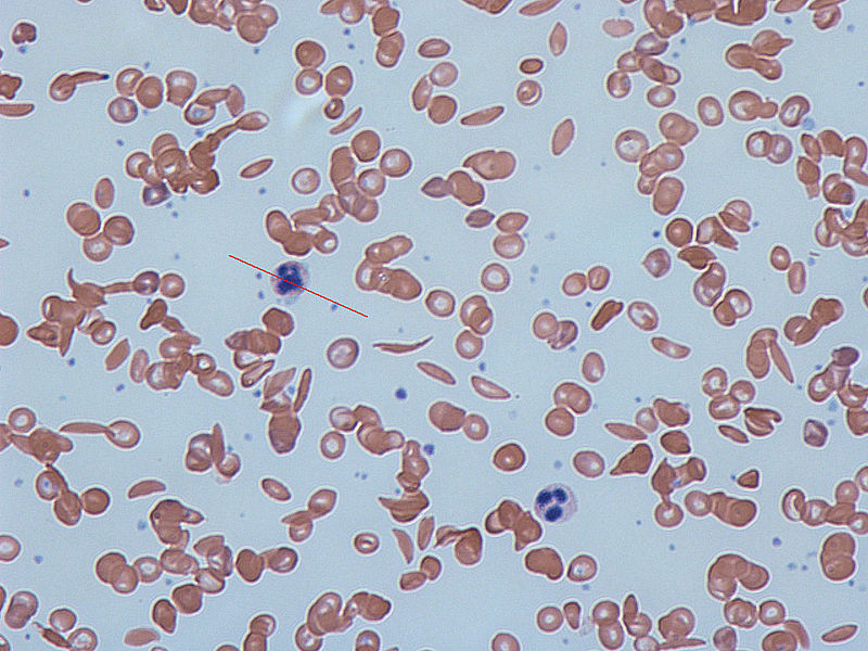 Red Line indicates Sickle Cell